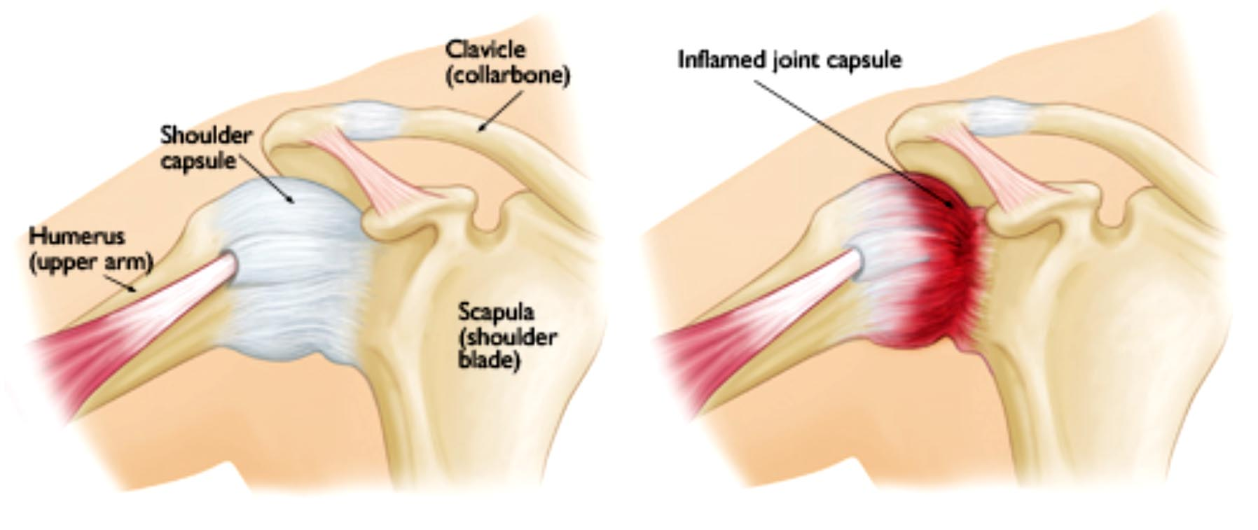 frozen shoulder Frozen shoulder is a very common occurrence in women between the ages of 40-60 years symptoms include stiffness, pain, and limited range of motion in your shoulder.