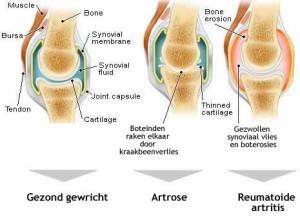 reuma-artrose-gezond-gewricht
