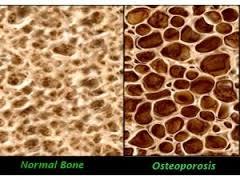 beweging bij osteoporose